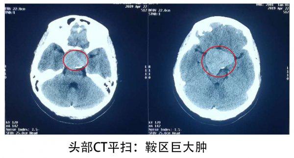 18岁女孩视力下降怪手机,原是脑袋里长鸡蛋大肿瘤